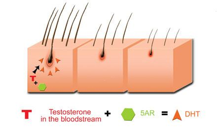 testosterone health risks