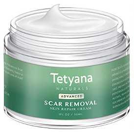 Tetyana Naturals Scar Removal Cream